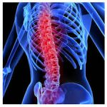 spinal cord injuries-indianbureaucracy