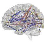 infant brain connections