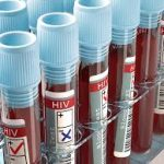 State-of-the-art HIV