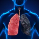 Possible new treatment strategy for lung cancer
