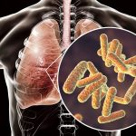 In cystic fibrosis, lungs feed deadly bacteria