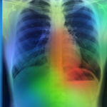 AI system accurately detects key findings in chest X-rays of pneumonia patients within 10 seconds