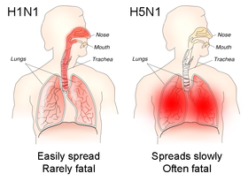 H1N1 infection